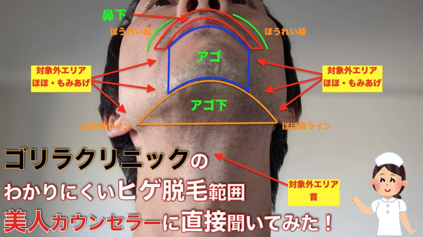 【画像で解説】ゴリラクリニックのヒゲ脱毛完了コースってどこまでが範囲なの?【カウンセラーに直接聞いた】サムネイル画像