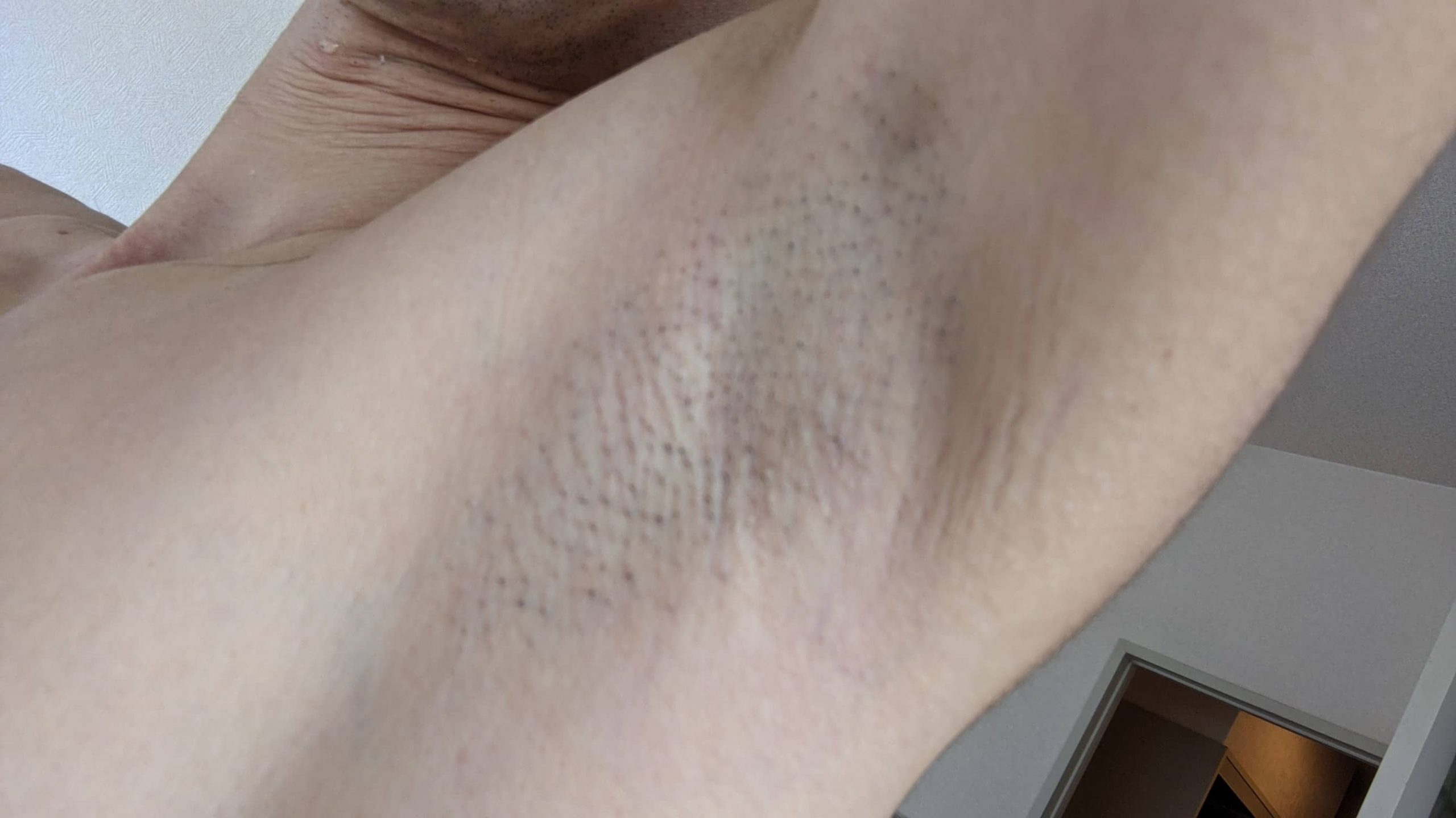 ワキ脱毛1回目直後の肌の様子