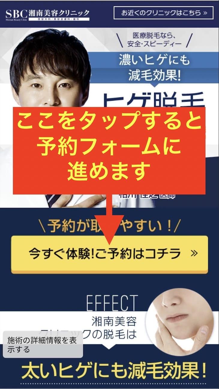 湘南美容クリニックのトップページにある予約フォームボタン