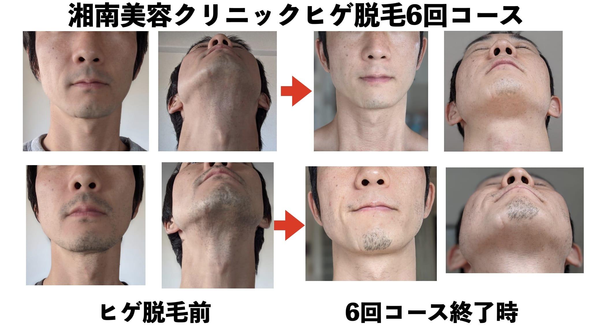 【写真多数】湘南美容クリニックの医療ヒゲ脱毛6回コースが終わったので効果を共有しますサムネイル画像