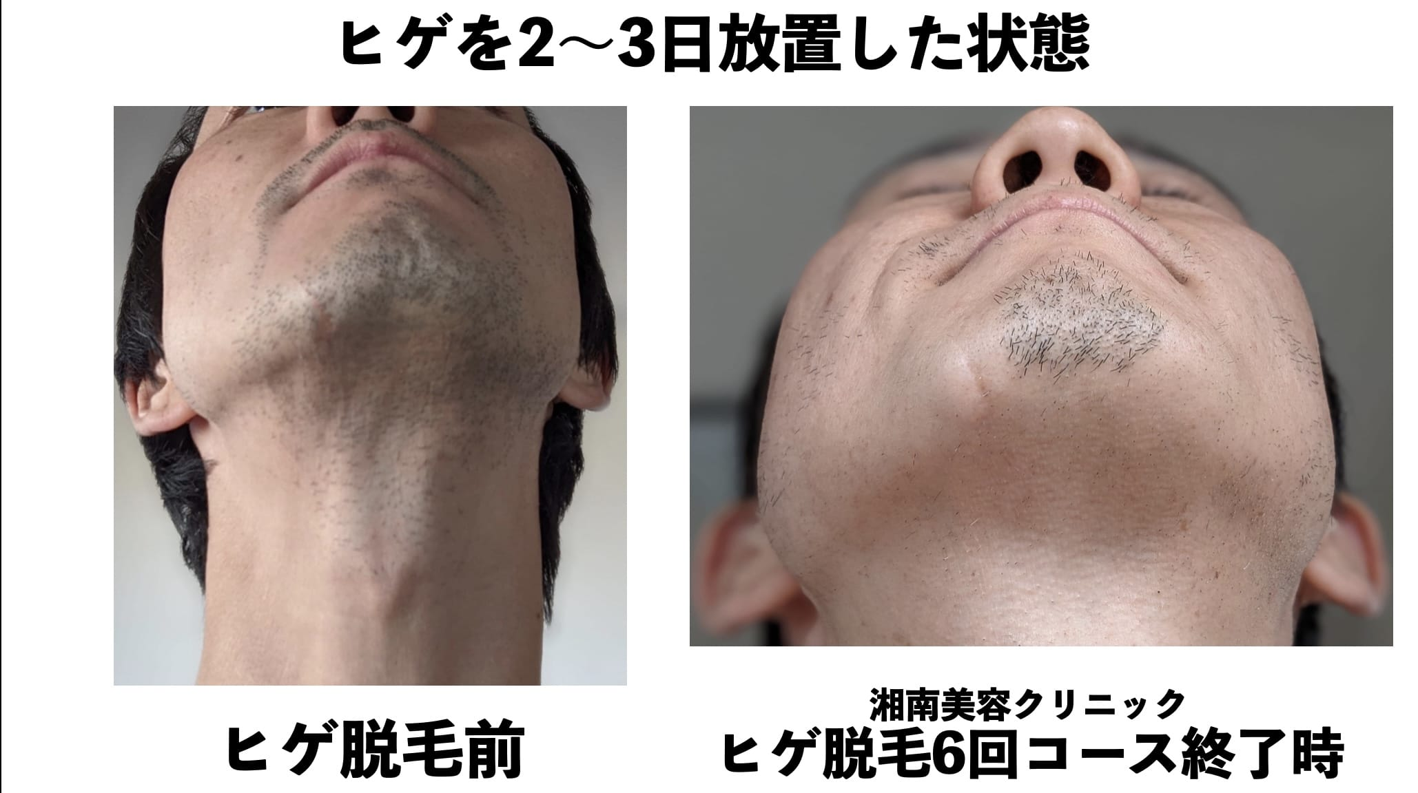 ヒゲを2〜3日放置した状態での比較(アゴ下)写真