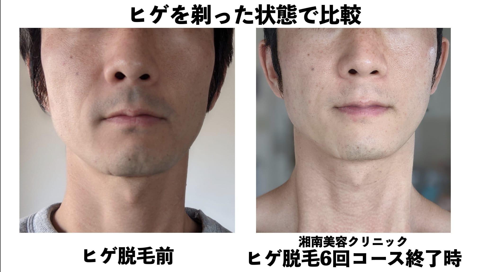 ヒゲを剃った状態での比較(口周り)湘南美容クリニックのヒゲ脱毛の効果検証