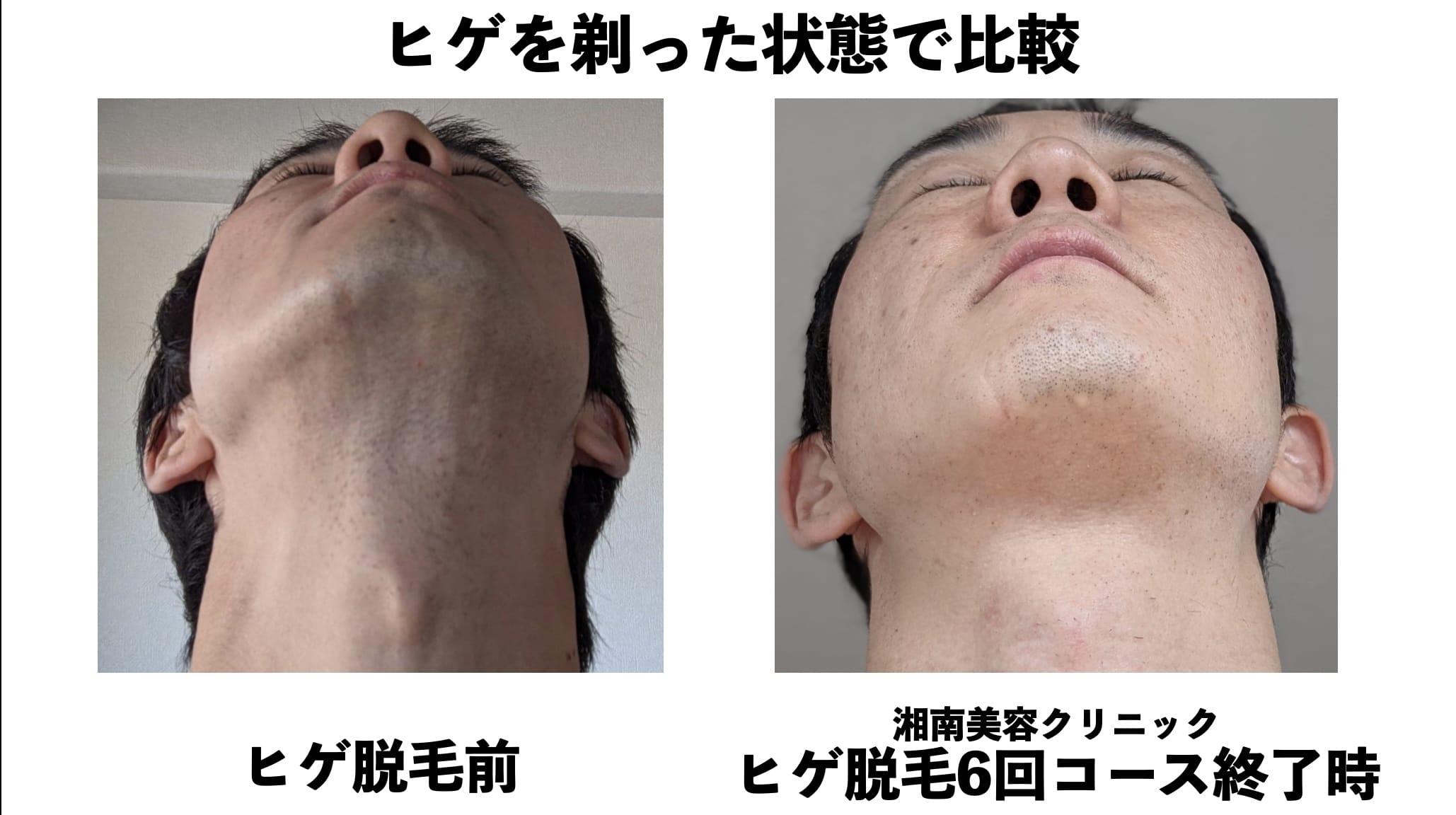 ヒゲを剃った状態での比較(アゴ・アゴ下)湘南美容クリニックのヒゲ脱毛の効果検証