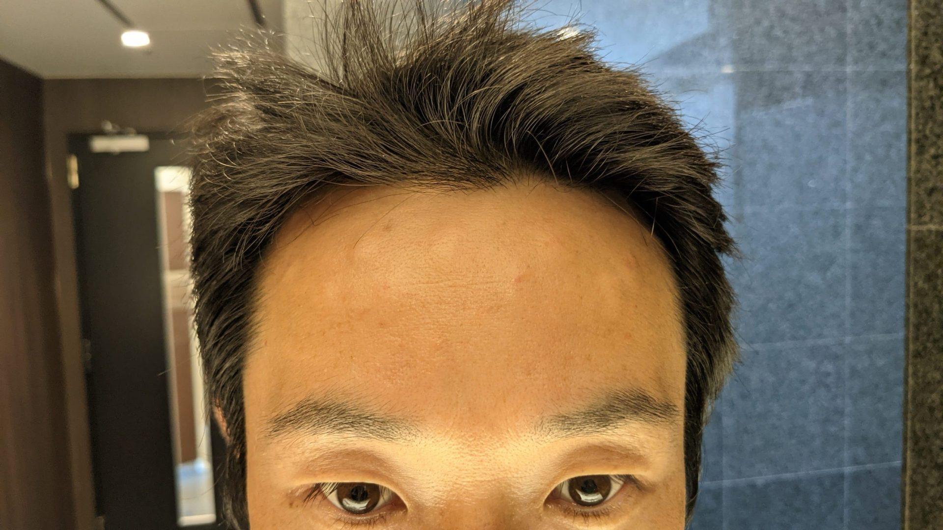 ボトックス注射直後の肌がボコボコになっている様子。